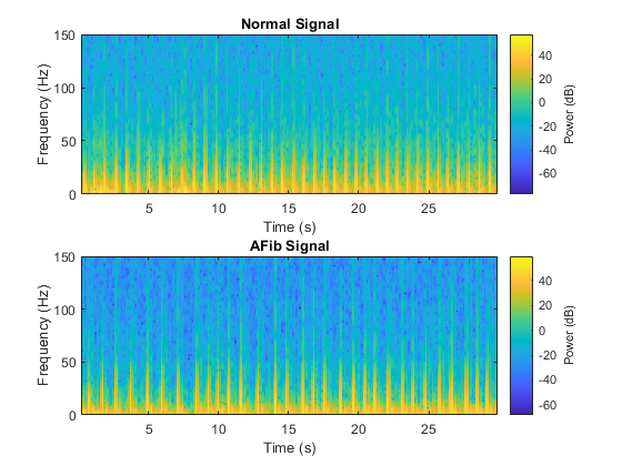 Classify ECG Signals Using LSTM Networks » Deep Learning - MATLAB
